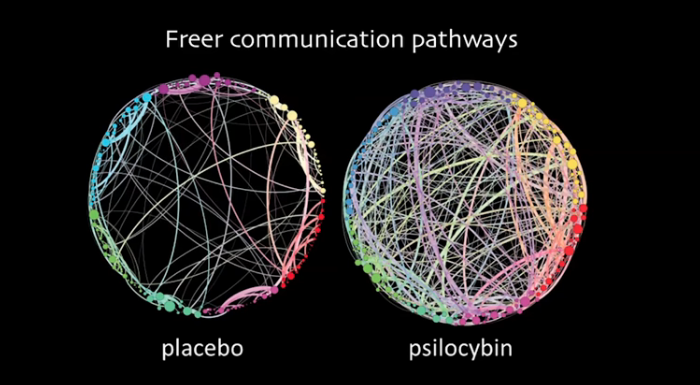 FMRI representation of Normal versus Psilocybin
